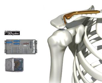 Fechamento de Crânio e buco