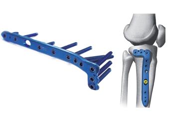 Implantes para Fechamento de Crânio e Buco